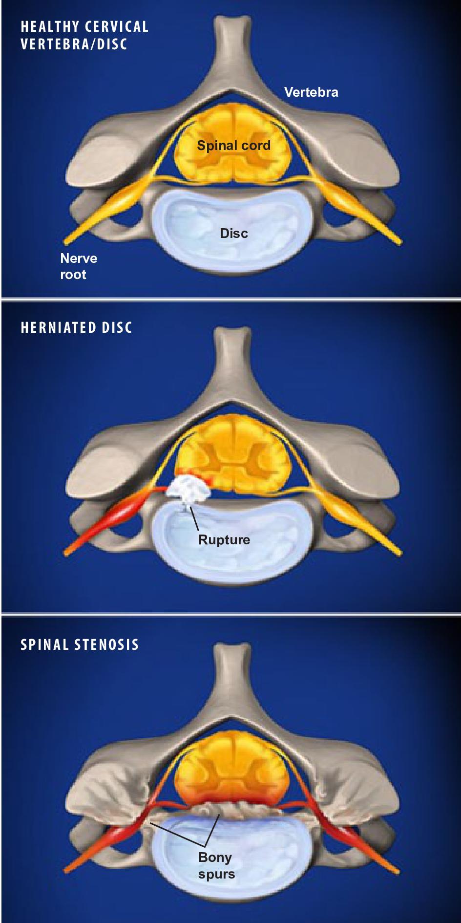 Cervical Radiculopathy Show Low AZ | Cervical Radiculopathy Treatment