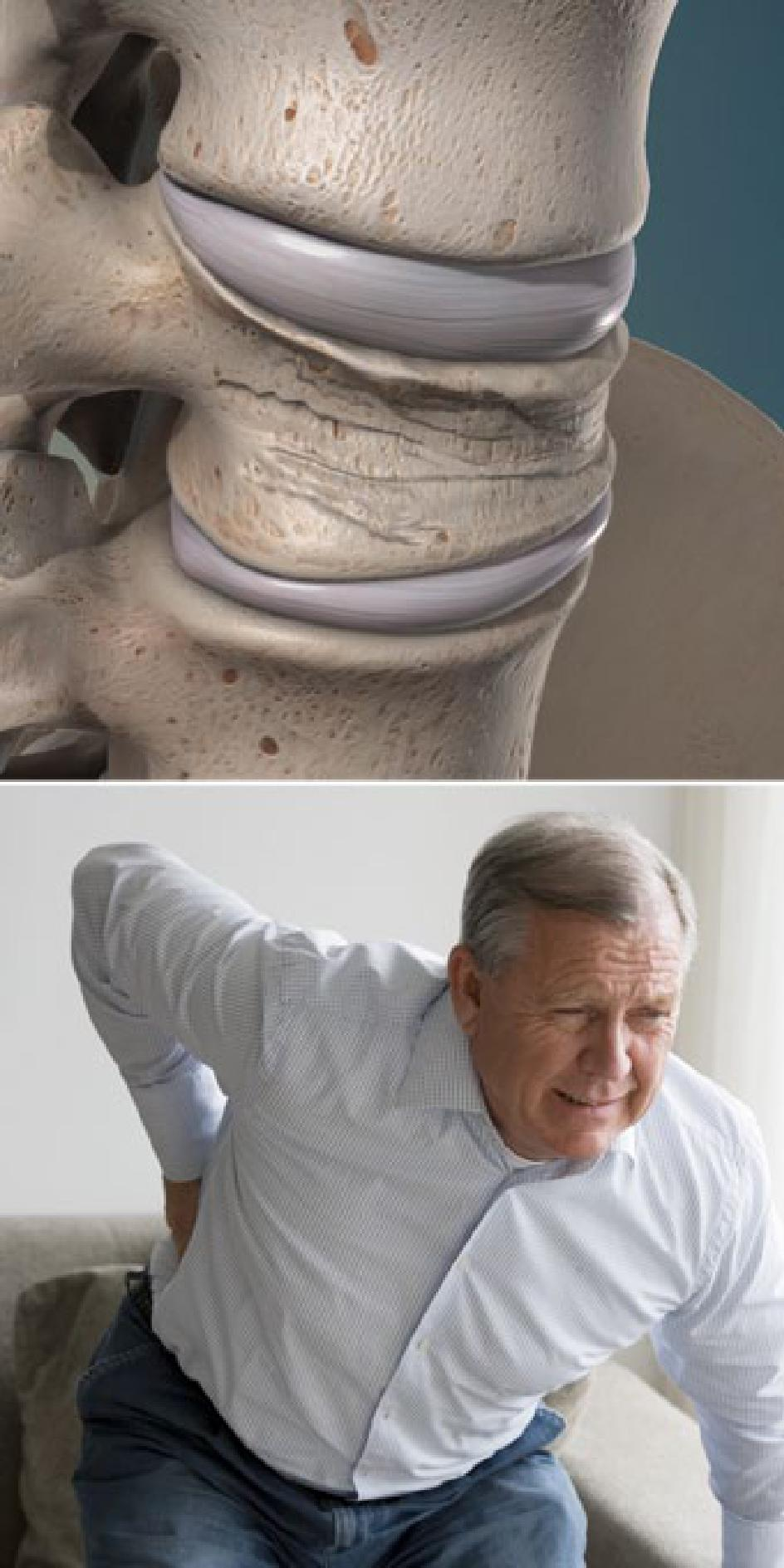 Compression Fractures of the Spine Show Low AZ