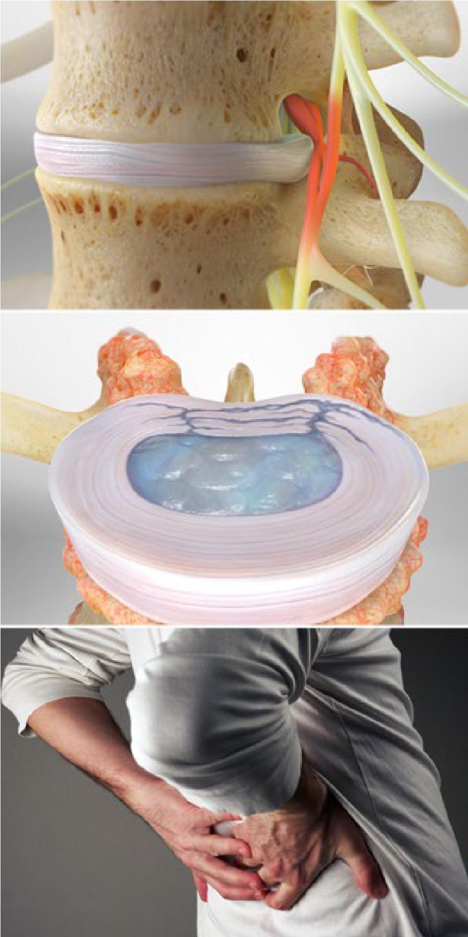 Herniated Discs Show Low AZ | Herniated Disc Treatment