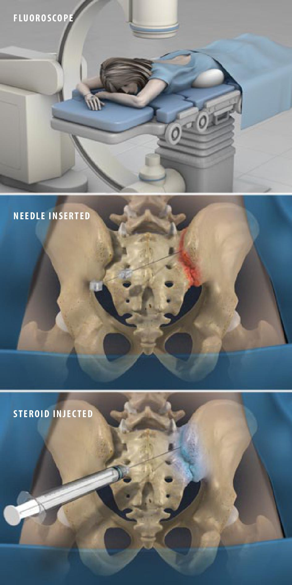 Sacroiliac Joint Steroid Injection Show Low AZ | Steroid Injections