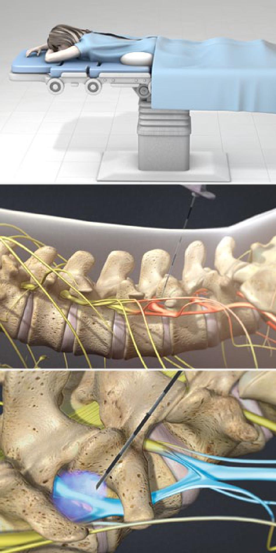 Lumbar Transforaminal Epidural Steroid Injection Show Low AZ