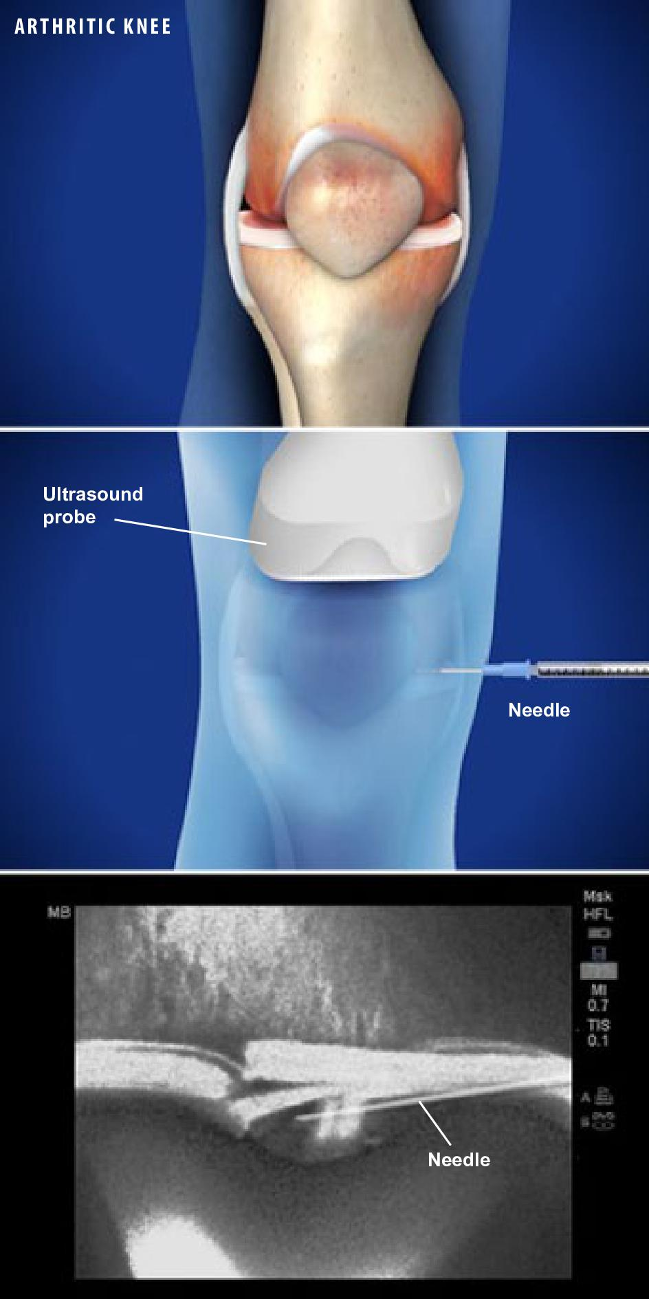 Ultrasound Guided Injection for Knee Pain Show Low AZ